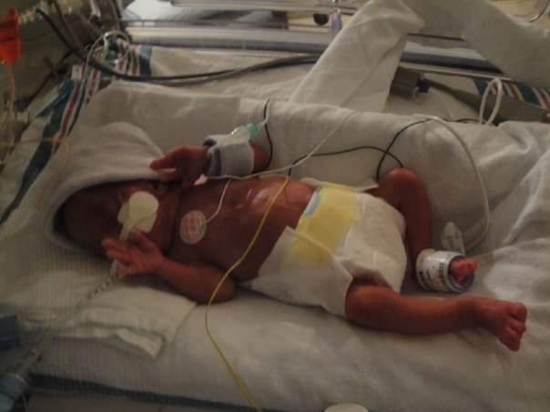 A preemie in the NICU, connected to various devices by wires and tubes